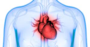 Course Image: Cardiovascular Disease Prevention